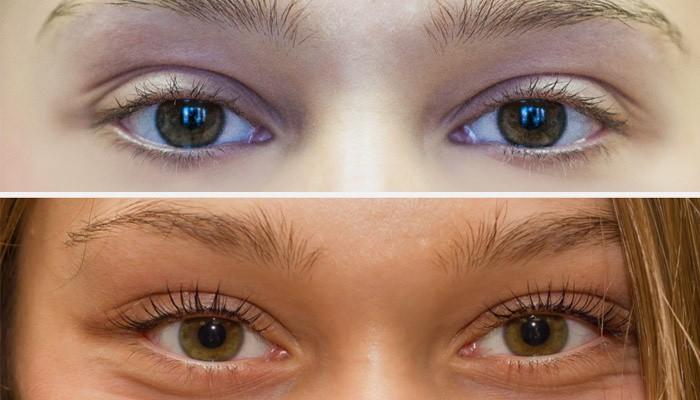 Девушка до и после ламинирования ресниц