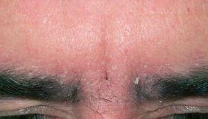 Шелушение кожи на бровях и под ними — причины и лечение