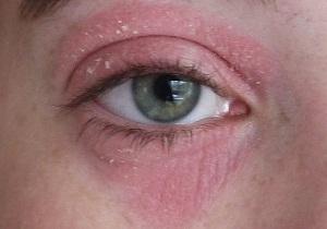 как проявляется аллергия на тушь