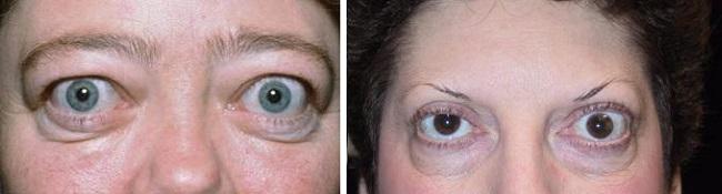 Офтальмопатия
