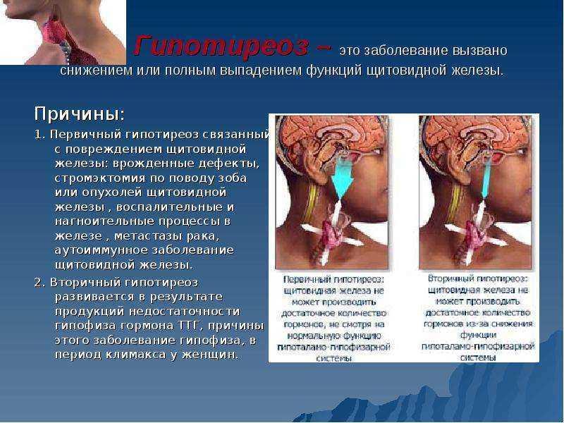 Выпадение ресниц: причины и способы лечения