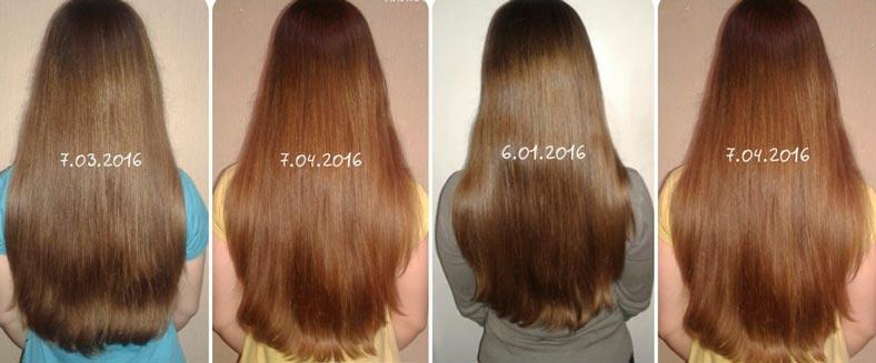 Никотиновая кислота фото волос до и после