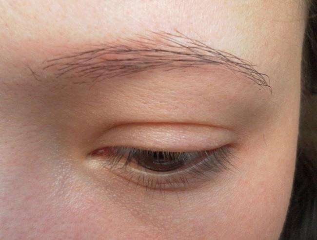 Основные причины замедления роста волос