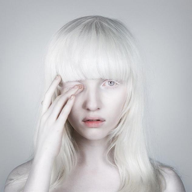 Белые от природы ресницы могут быть у альбиносов