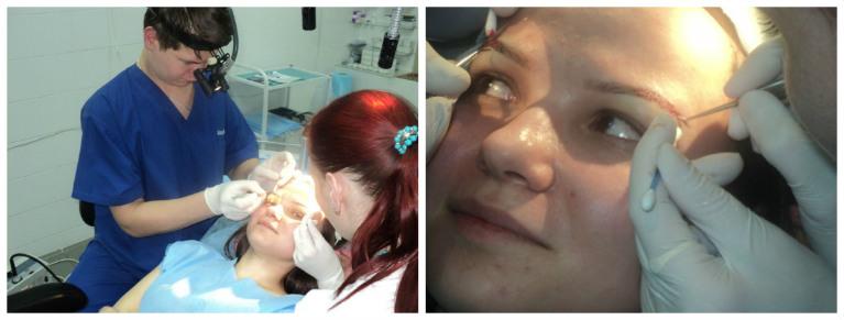Процедура пересадки бровей