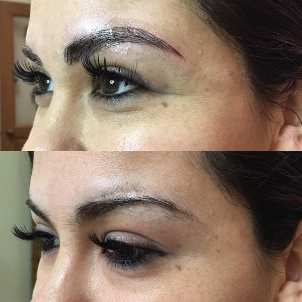 Фото до и после: Реконструкция бровей по шраму