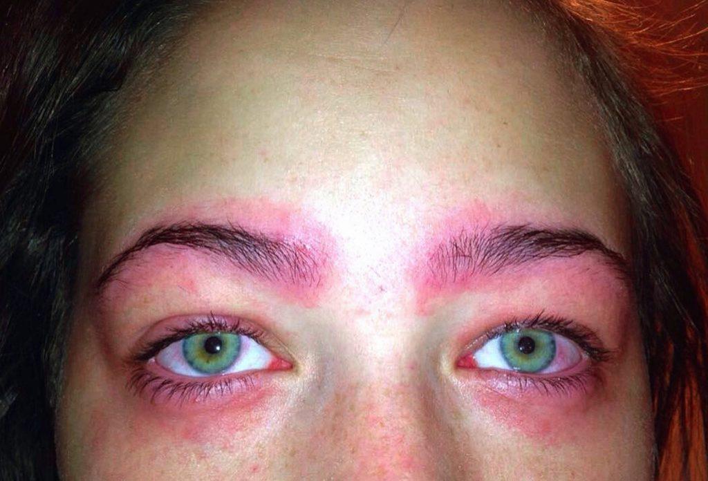 красные пятна вокруг глаз