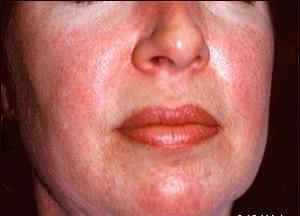 как лечить аллергическую сыпь на лице