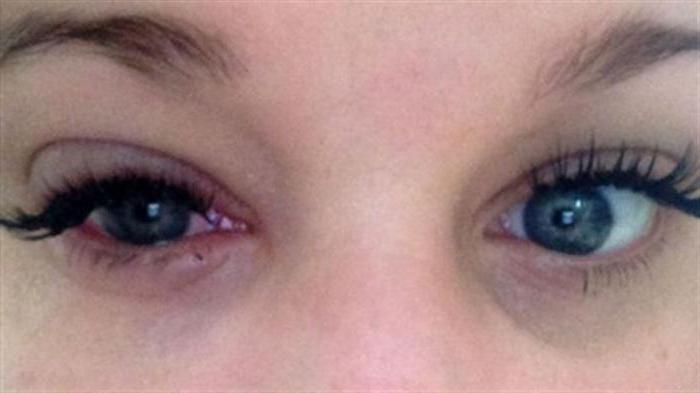 Аллергия на остатки туши для ресниц