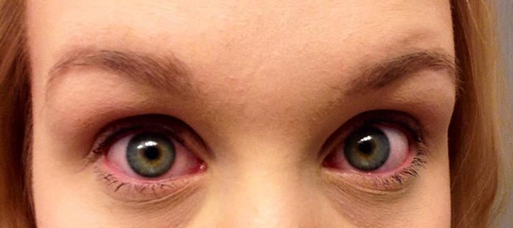 Как проявляется аллергия на тушь для ресниц?