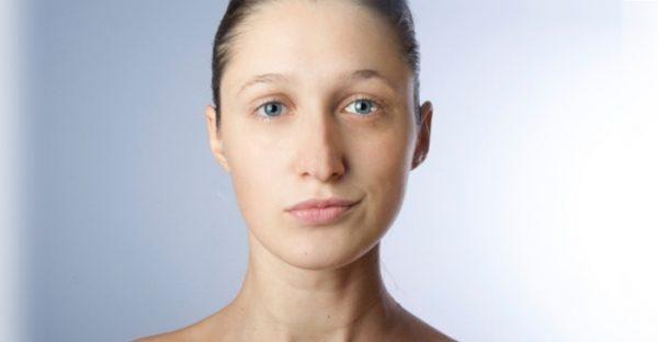 приобретенная ассиметрия лица