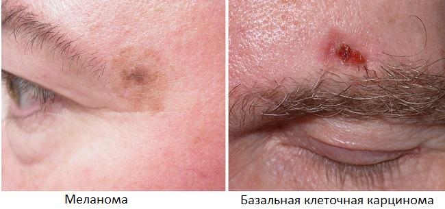 Рак кожи в области брови