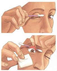 Краткая инструкция по извлечению инородного тела из глаза.
