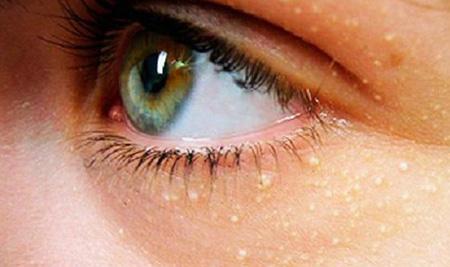 Удаление жировиков в области глаз лучше доверить косметологу, не пытаясь избавиться от кожного дефекта самостоятельно