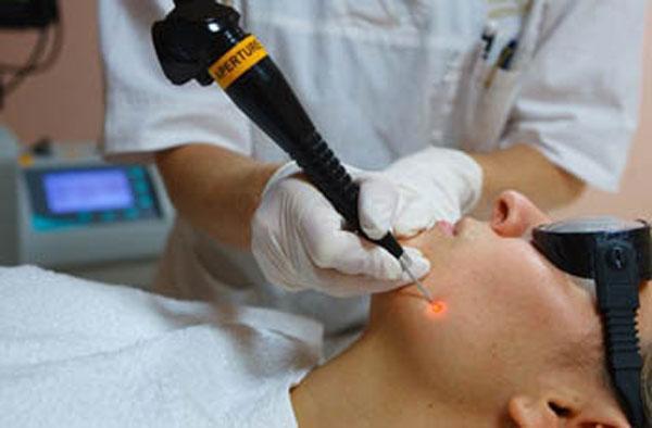 лазерное удаление невуса на лице