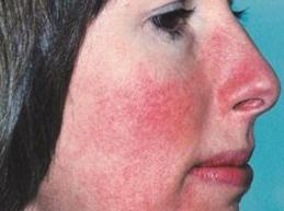 Что такое гиперемия лица, опасно ли это, как лечить недуг