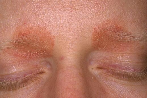 Сухой себорейный дерматит