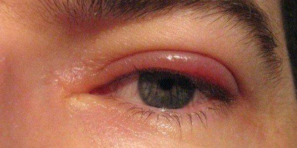 Аллергия на нарощенные ресницы, что делать?