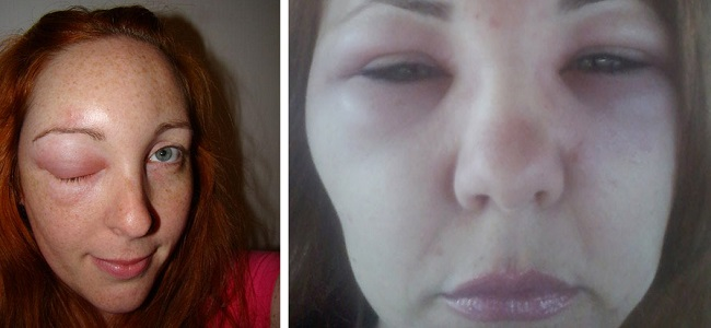 Отек в области глаз после инъекций ботокса