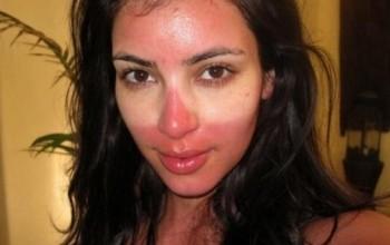Защита нормальной кожи