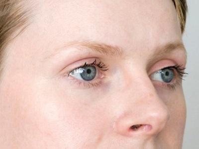 Выпадение бровей при гипотериозе