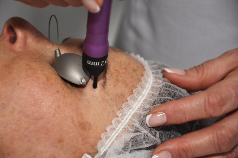Лазерная эпиляция особо популярна благодаря своему долговечному эффекту