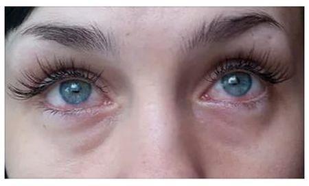 Красные глаза после наращивания ресниц – причины и способы устранения неприятности