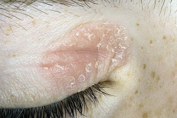 Серьезный вопрос: причины и лечение выпадения ресниц