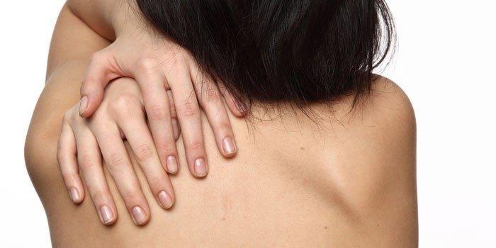 Девушка чешет кожу спины