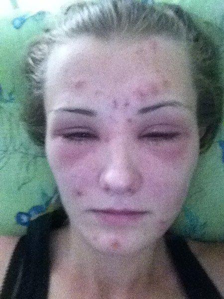 Аллергия на хну для бровей — первая помощь,симптомы и лечение