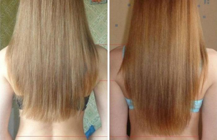 Эффективные средства для роста волос: полезные луковые маски, рецепты с соком и шелухой растения