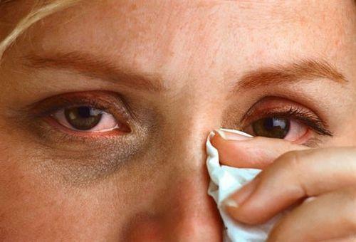 Слезоточивость и покраснение – признак аллергии на косметику.