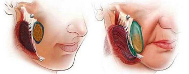 провисание нижней части лица