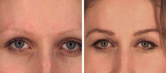 До и после трансплантации бровей