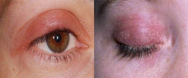 Фото аллергии на тушь для ресниц