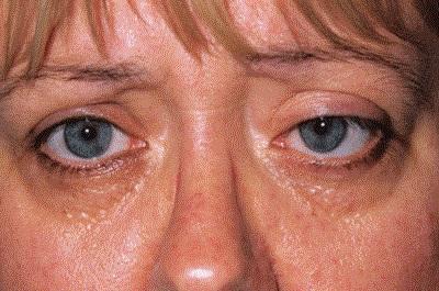 Опухшие брови при экзофталье