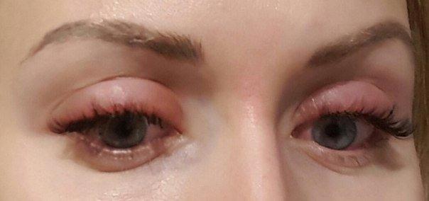 Аллергия на нарощенные ресницы, чешуться глаза