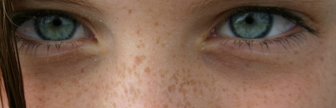 Почему шелушатся брови и что делать при данной проблеме