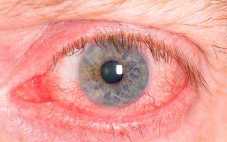 Красные глаза после наращивания ресниц: что делать и как лечить