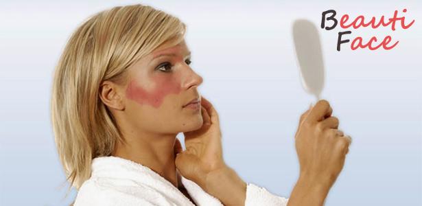 Дерматит на лице: как не поддаться панике и вылечить кожу