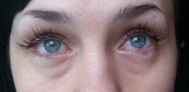 Фото результата аллергии на клей