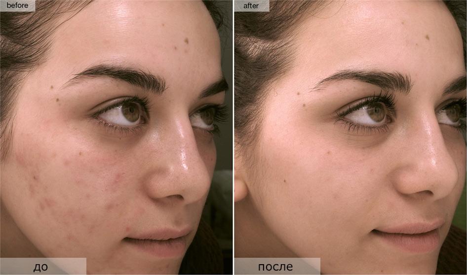 Дополнительные рекомендации по использованию грязевых масок для лица