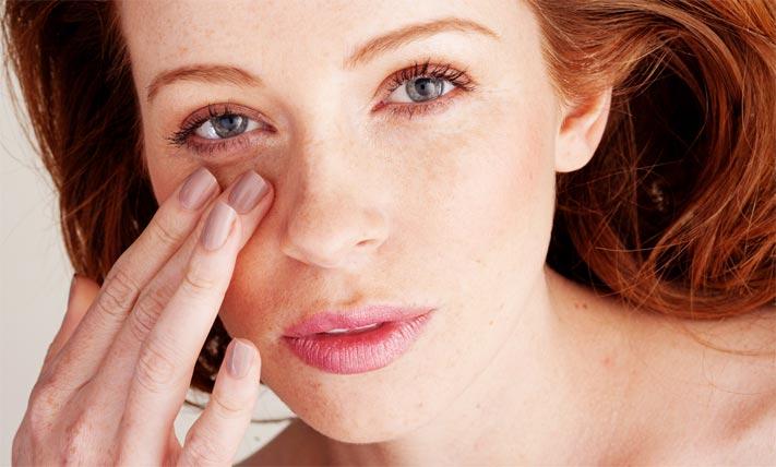 Круги под глазами могут свидетельствовать о каком-то заболевании