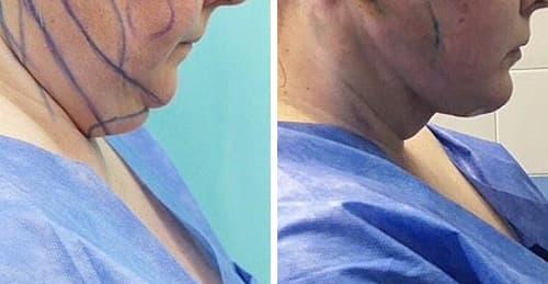 Подтяжка шеи методом динамической платизмопластики