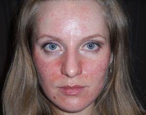 Советы против раздражений на коже