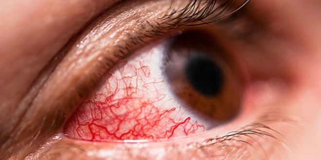 Воспалительные заболевания глаз
