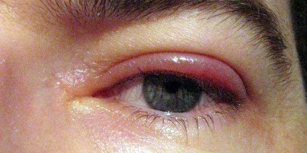 Аллергия на нарощенные ресницы: с какими последствиями можно столкнуться