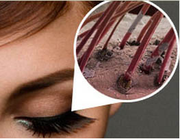 На фото поражение волосков демодексом
