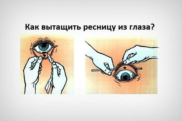 Способ вытащить ресницу или соринку из глаза