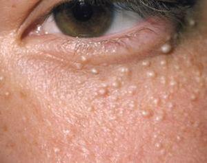 Как бороться с белыми точками на лице